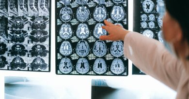 High-definition MRI reveals previously hidden territory of the human brain